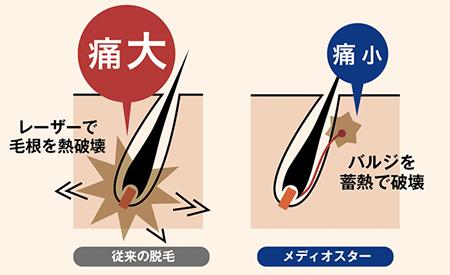 熱破壊式と蓄熱式の説明画像
